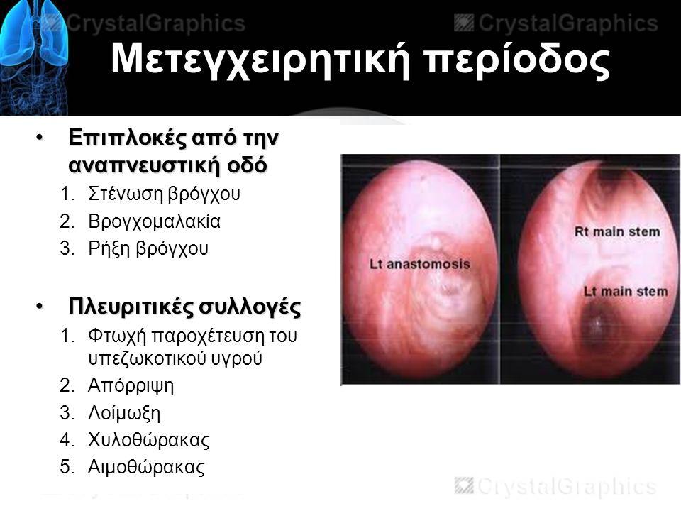 Μετεγχειρητική περίοδος Επιπλοκές από την αναπνευστική οδόΕπιπλοκές από την αναπνευστική οδό 1.Στένωση βρόγχου 2.Βρογχομαλακία 3.Ρήξη βρόγχου Πλευριτικές συλλογέςΠλευριτικές συλλογές 1.Φτωχή παροχέτευση του υπεζωκοτικού υγρού 2.Απόρριψη 3.Λοίμωξη 4.Χυλοθώρακας 5.Αιμοθώρακας