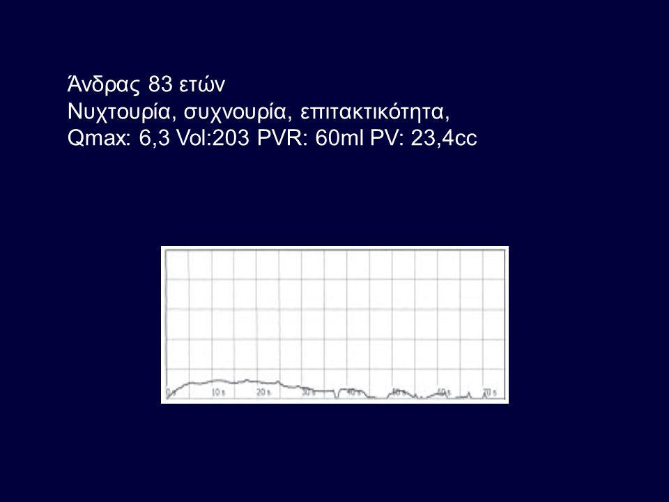 Άνδρας 83 ετών Νυχτουρία, συχνουρία, επιτακτικότητα, Qmax: 6,3 Vol:203 PVR: 60ml PV: 23,4cc