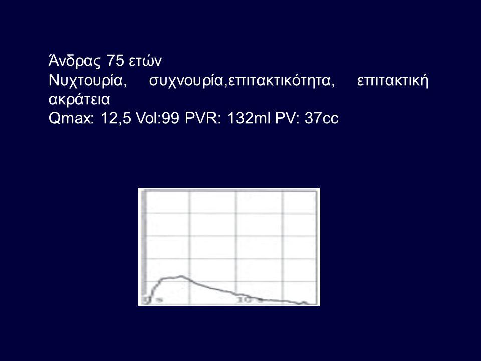 Άνδρας 75 ετών Νυχτουρία, συχνουρία,επιτακτικότητα, επιτακτική ακράτεια Qmax: 12,5 Vol:99 PVR: 132ml PV: 37cc