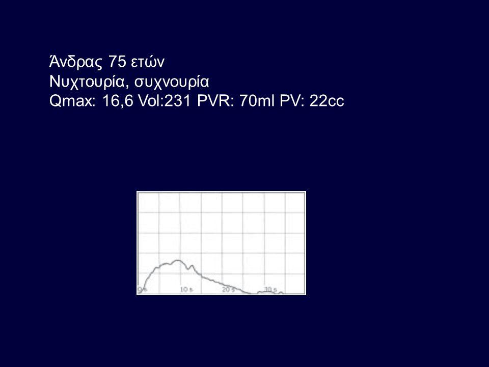 Άνδρας 75 ετών Νυχτουρία, συχνουρία Qmax: 16,6 Vol:231 PVR: 70ml PV: 22cc