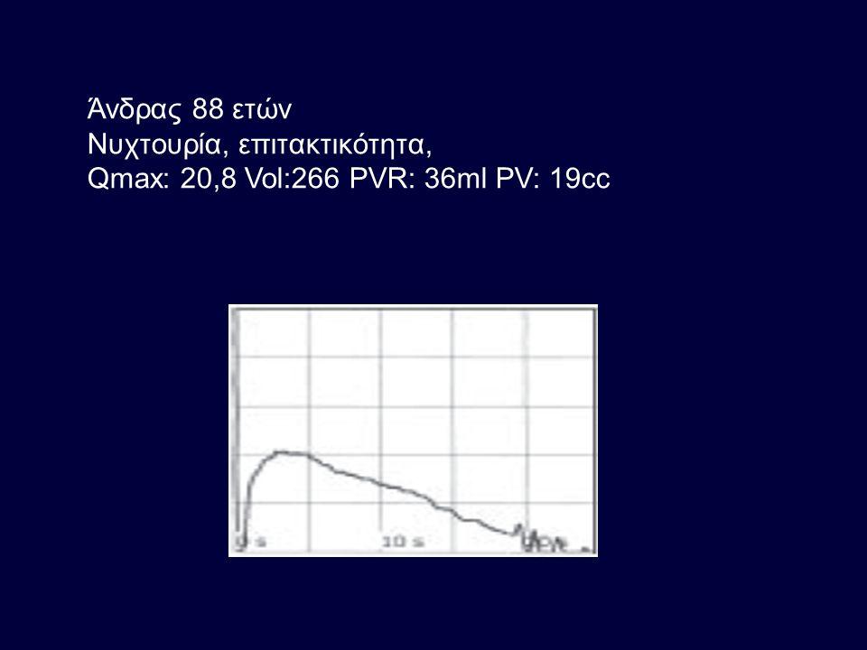 Άνδρας 88 ετών Νυχτουρία, επιτακτικότητα, Qmax: 20,8 Vol:266 PVR: 36ml PV: 19cc