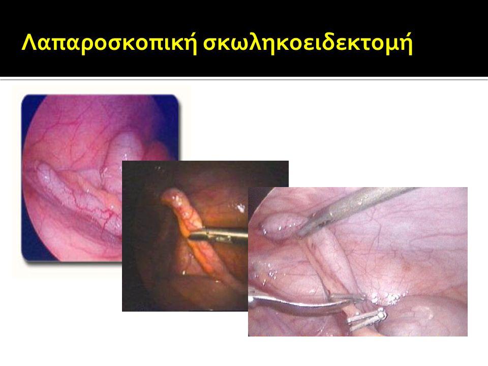 Λαπαροσκοπική σκωληκοειδεκτομή