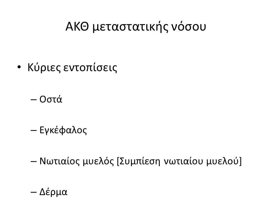 ΑΚΘ μεταστατικής νόσου Κύριες εντοπίσεις – Οστά – Εγκέφαλος – Νωτιαίος μυελός [Συμπίεση νωτιαίου μυελού] – Δέρμα