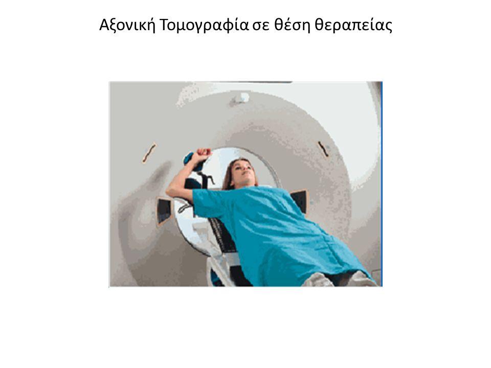 Αξονική Τομογραφία σε θέση θεραπείας