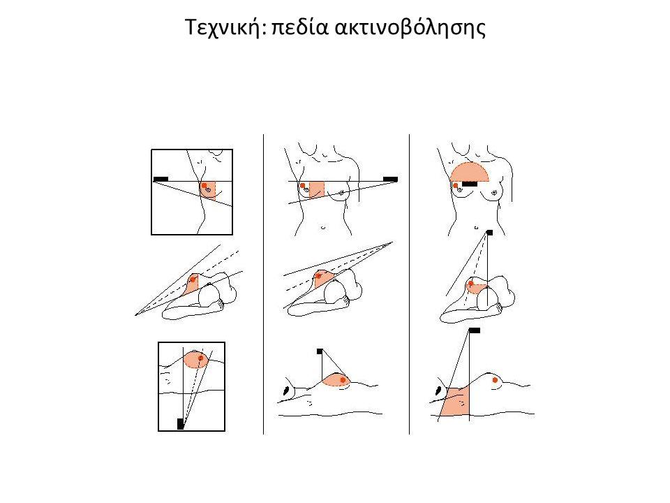 Τεχνική: πεδία ακτινοβόλησης