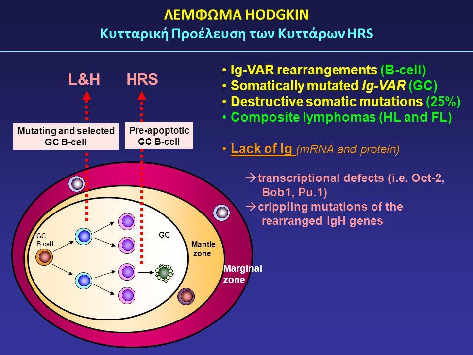 ΛΕΜΦΩΜΑ HODGKIN Κυτταρική Προέλευση των Κυττάρων HRS Ig-VAR rearrangements (B-cell) Somatically mutated Ig-VAR (GC) Destructive somatic mutations (25%) Composite lymphomas (HL and FL) Lack of Ig (mRNA and protein)  transcriptional defects (i.e.