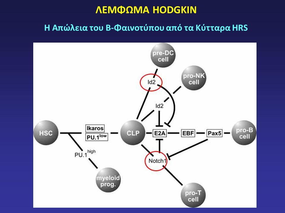 ΛΕΜΦΩΜΑ HODGKIN Η Απώλεια του Β-Φαινοτύπου από τα Κύτταρα HRS