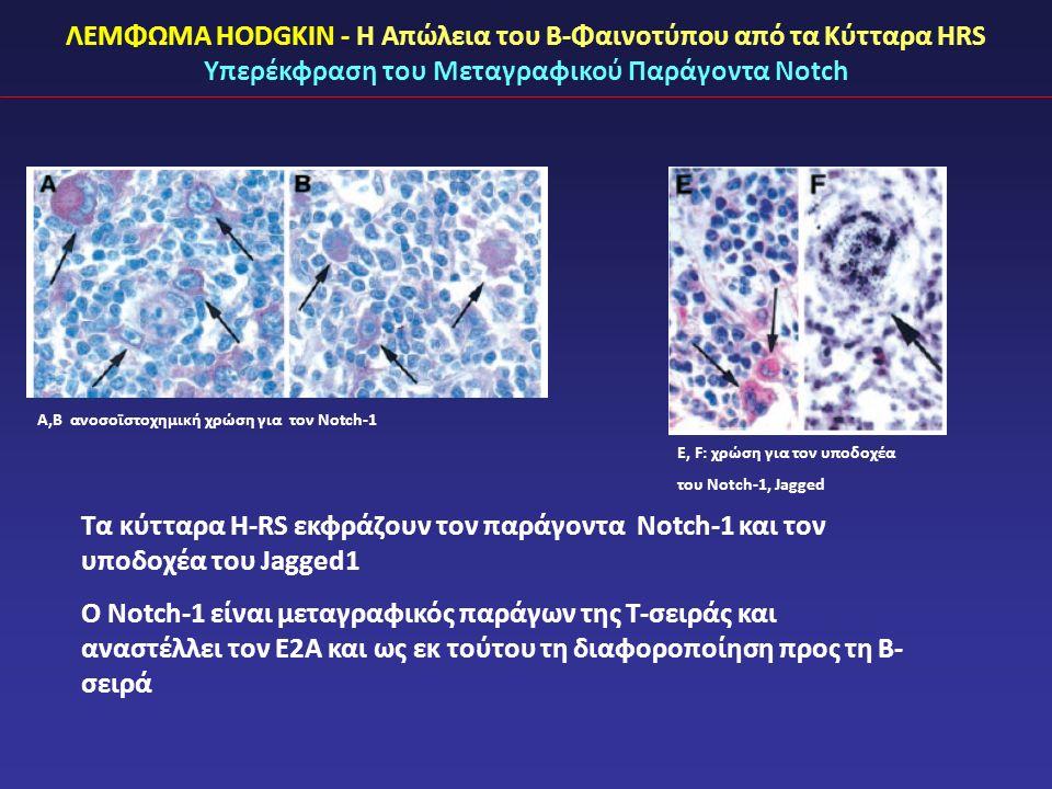 ΛΕΜΦΩΜΑ HODGKIN - Η Απώλεια του Β-Φαινοτύπου από τα Κύτταρα HRS Υπερέκφραση του Μεταγραφικού Παράγοντα Notch Τα κύτταρα H-RS εκφράζουν τον παράγοντα Notch-1 και τον υποδοχέα του Jagged1 O Notch-1 είναι μεταγραφικός παράγων της Τ-σειράς και αναστέλλει τον Ε2Α και ως εκ τούτου τη διαφοροποίηση προς τη Β- σειρά E, F: χρώση για τον υποδοχέα του Notch-1, Jagged A,B ανοσοϊστοχημική χρώση για τον Notch-1