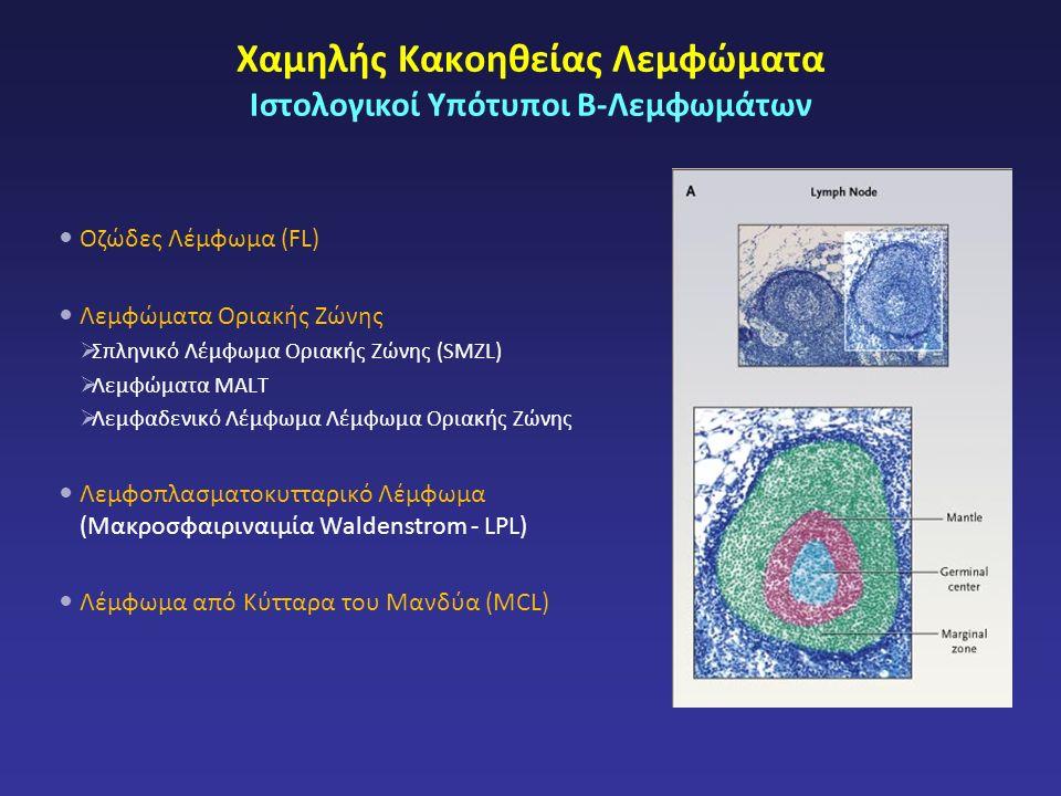 Χαμηλής Κακοηθείας Λεμφώματα Ιστολογικοί Υπότυποι Β-Λεμφωμάτων Οζώδες Λέμφωμα (FL) Λεμφώματα Οριακής Ζώνης  Σπληνικό Λέμφωμα Οριακής Ζώνης (SMZL)  Λεμφώματα MALT  Λεμφαδενικό Λέμφωμα Λέμφωμα Οριακής Ζώνης Λεμφοπλασματοκυτταρικό Λέμφωμα (Μακροσφαιριναιμία Waldenstrom - LPL) Λέμφωμα από Κύτταρα του Μανδύα (MCL)
