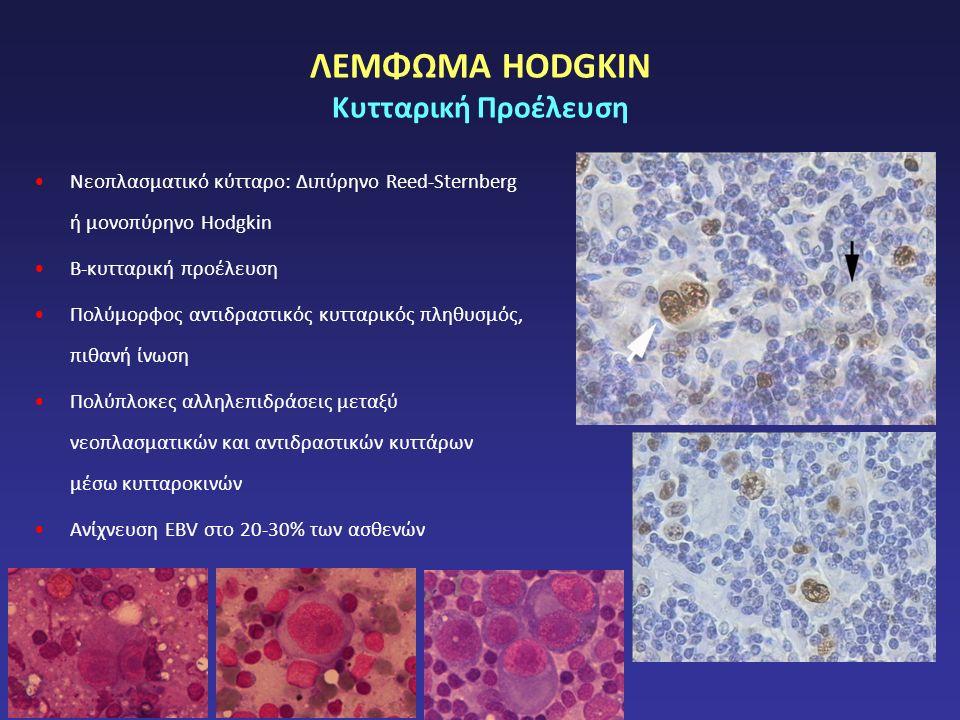 ΛΕΜΦΩΜΑ HODGKIN Κυτταρική Προέλευση Νεοπλασματικό κύτταρο: Διπύρηνο Reed-Sternberg ή μονοπύρηνο Hodgkin Β-κυτταρική προέλευση Πολύμορφος αντιδραστικός κυτταρικός πληθυσμός, πιθανή ίνωση Πολύπλοκες αλληλεπιδράσεις μεταξύ νεοπλασματικών και αντιδραστικών κυττάρων μέσω κυτταροκινών Ανίχνευση EBV στο 20-30% των ασθενών
