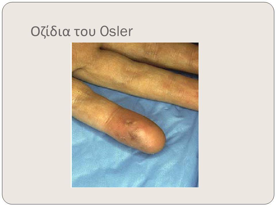 Οζίδια του Osler
