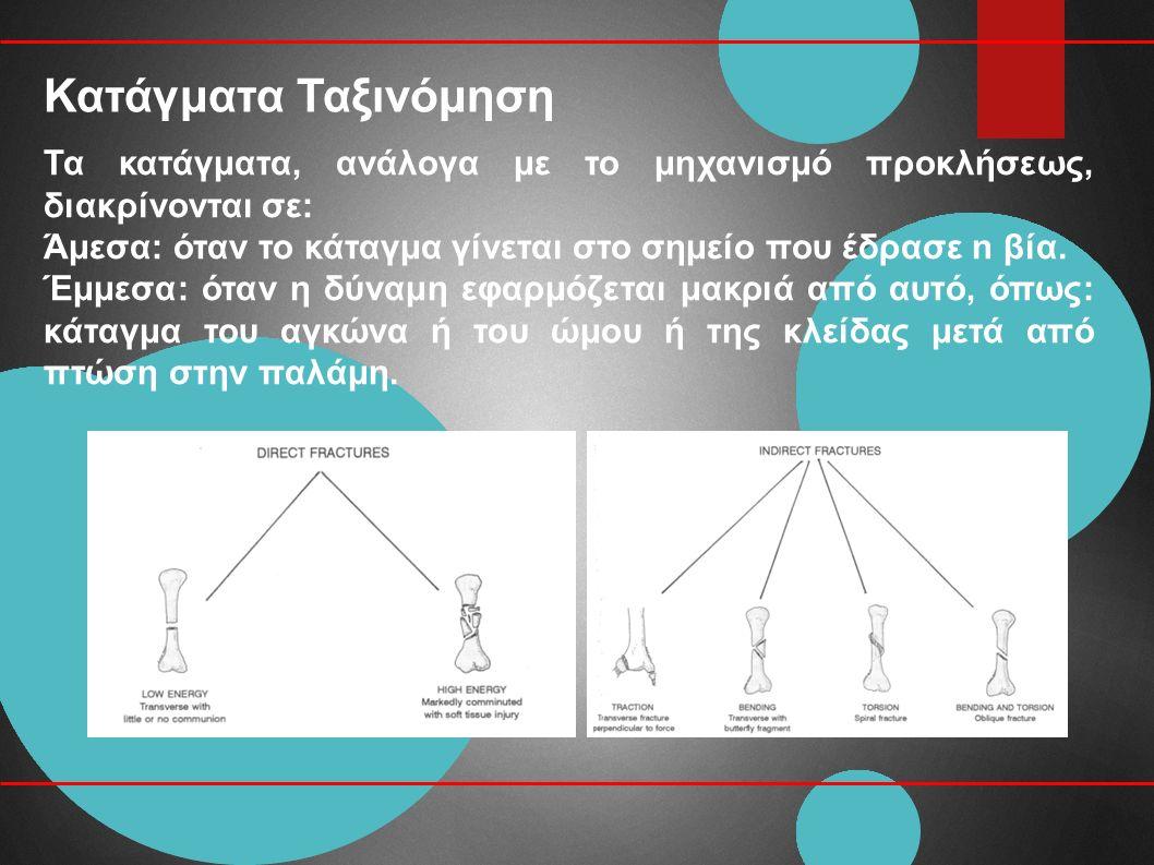 Κατάγματα Ταξινόμηση Τα κατάγματα, ανάλογα με το μηχανισμό προκλήσεως, διακρίνονται σε: Άμεσα: όταν το κάταγμα γίνεται στο σημείο που έδρασε n βία.