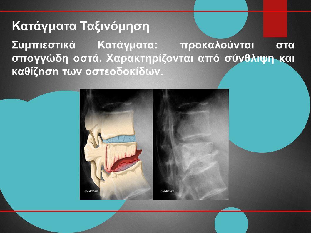 Κατάγματα Ταξινόμηση Συμπιεστικά Κατάγματα: προκαλούνται στα σπογγώδη οστά.