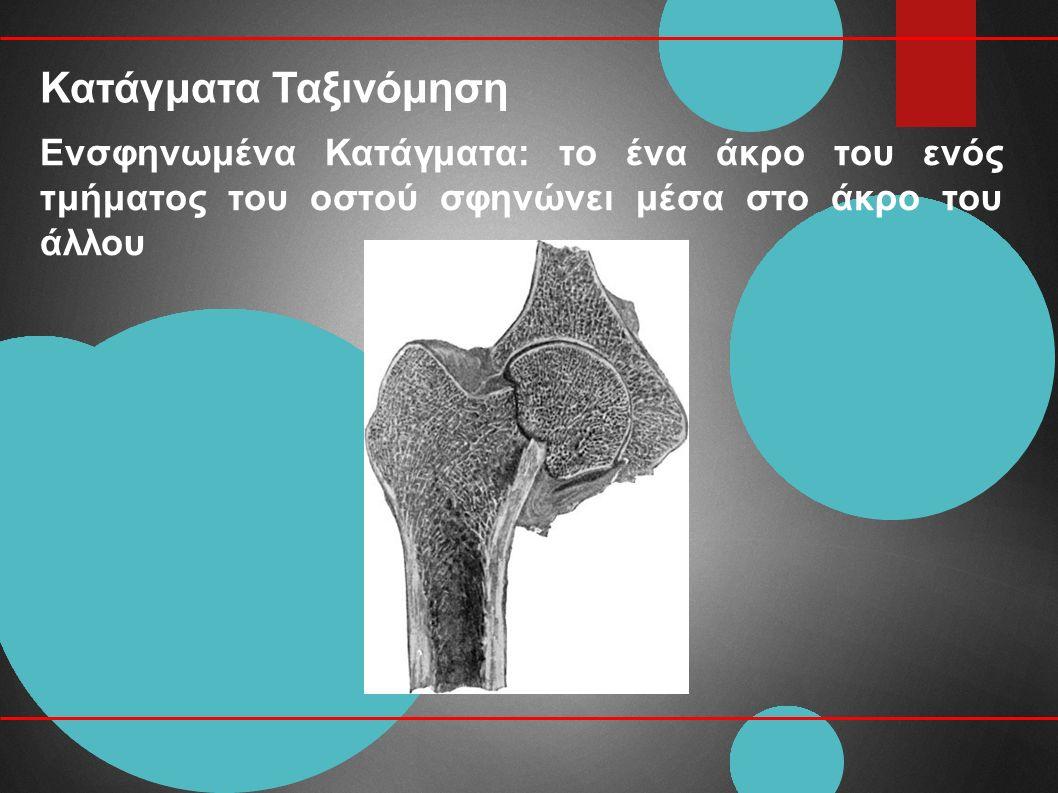 Κατάγματα Ταξινόμηση Ενσφηνωμένα Κατάγματα: το ένα άκρο του ενός τμήματος του οστού σφηνώνει μέσα στο άκρο του άλλου