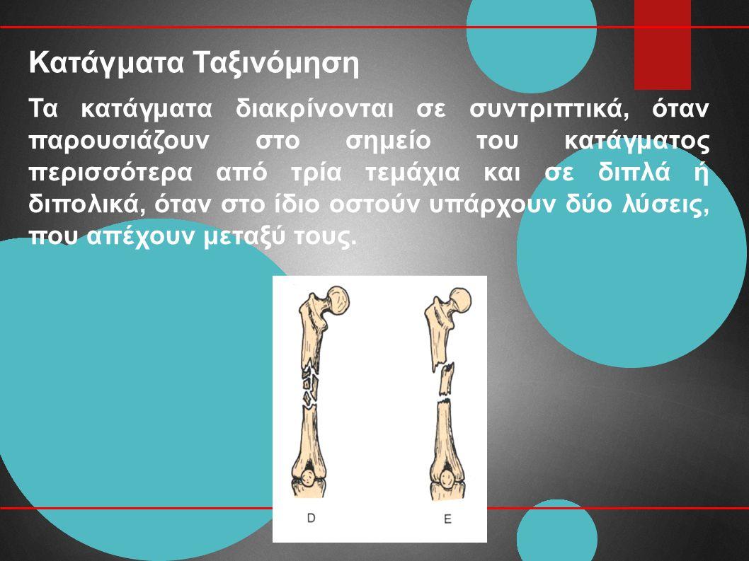 Κατάγματα Ταξινόμηση Τα κατάγματα διακρίνονται σε συντριπτικά, όταν παρουσιάζουν στο σημείο του κατάγματος περισσότερα από τρία τεμάχια και σε διπλά ή διπολικά, όταν στο ίδιο οστούν υπάρχουν δύο λύσεις, που απέχουν μεταξύ τους.