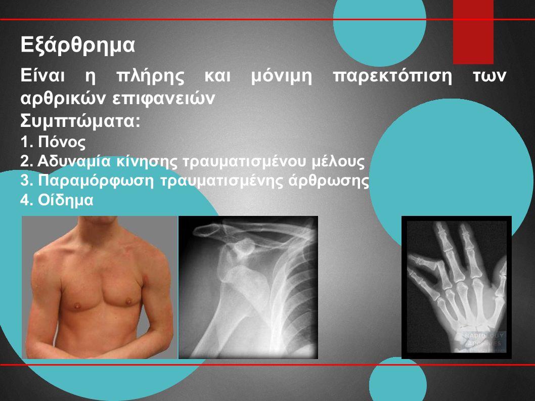 Εξάρθρημα Είναι η πλήρης και μόνιμη παρεκτόπιση των αρθρικών επιφανειών Συμπτώματα: 1.