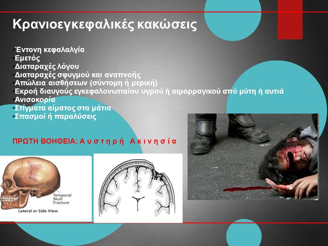 Έντονη κεφαλαλγία Εμετός Διαταραχές λόγου Διαταραχές σφυγμού και αναπνοής Απώλεια αισθήσεων (σύντομη ή μερική) Εκροή διαυγούς εγκεφαλονωτιαίου υγρού ή αιμορραγικού από μύτη ή αυτιά Ανισοκορία Στίγματα αίματος στα μάτια Σπασμοί ή παραλύσεις ΠΡΩΤΗ ΒΟΗΘΕΙΑ: Α υ σ τ η ρ ή Α κ ι ν η σ ί α Κρανιοεγκεφαλικές κακώσεις