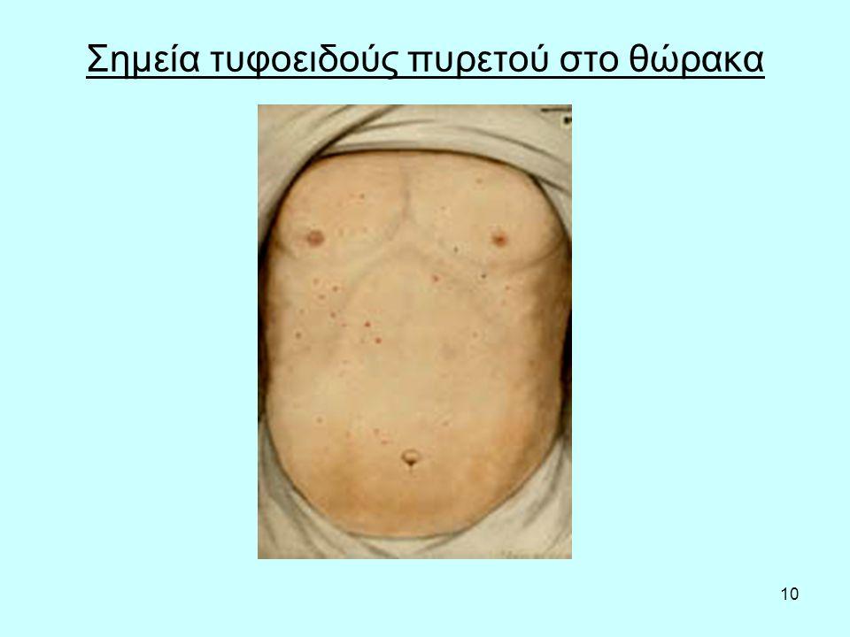 10 Σημεία τυφοειδούς πυρετού στο θώρακα