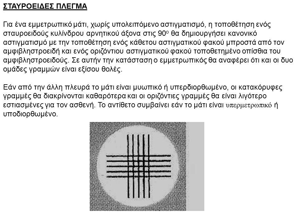 ΣΤΑΥΡΟΕΙΔΕΣ ΠΛΕΓΜΑ Για ένα εμμετρωπικό μάτι, χωρίς υπολειπόμενο αστιγματισμό, η τοποθέτηση ενός σταυροειδούς κυλίνδρου αρνητικού άξονα στις 90 ο θα δημιουργήσει κανονικό αστιγματισμό με την τοποθέτηση ενός κάθετου αστιγματικού φακού μπροστά από τον αμφιβληστροειδή και ενός οριζόντιου αστιγματικού φακού τοποθετημένο οπίσθια του αμφιβληστροειδούς.