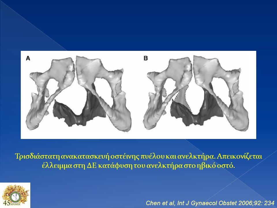 Chen et al, Int J Gynaecol Obstet 2006;92: 234 Τρισδιάστατη ανακατασκευή οστέινης πυέλου και ανελκτήρα.