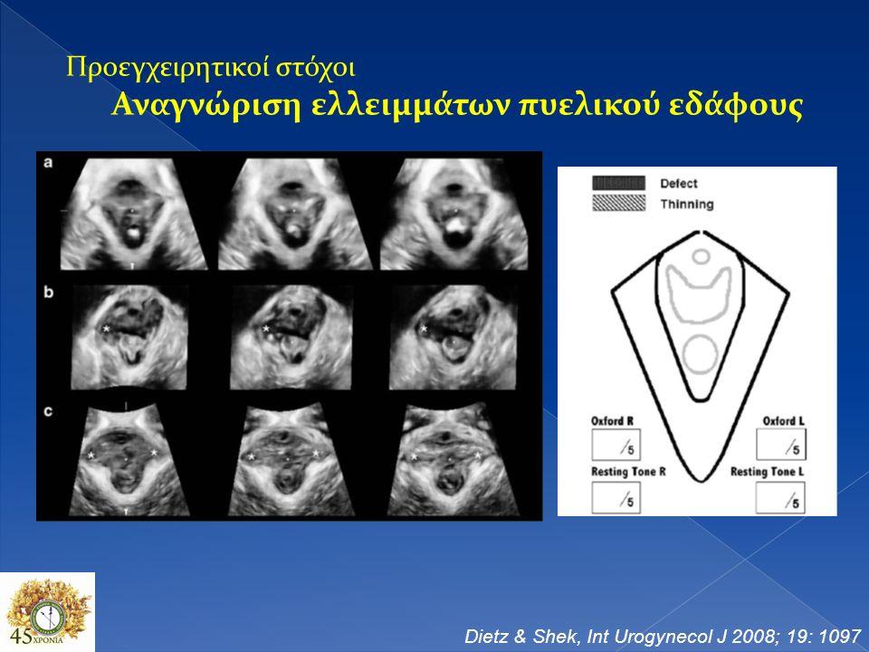 Προεγχειρητικοί στόχοι Αναγνώριση ελλειμμάτων πυελικού εδάφους Dietz & Shek, Int Urogynecol J 2008; 19: 1097