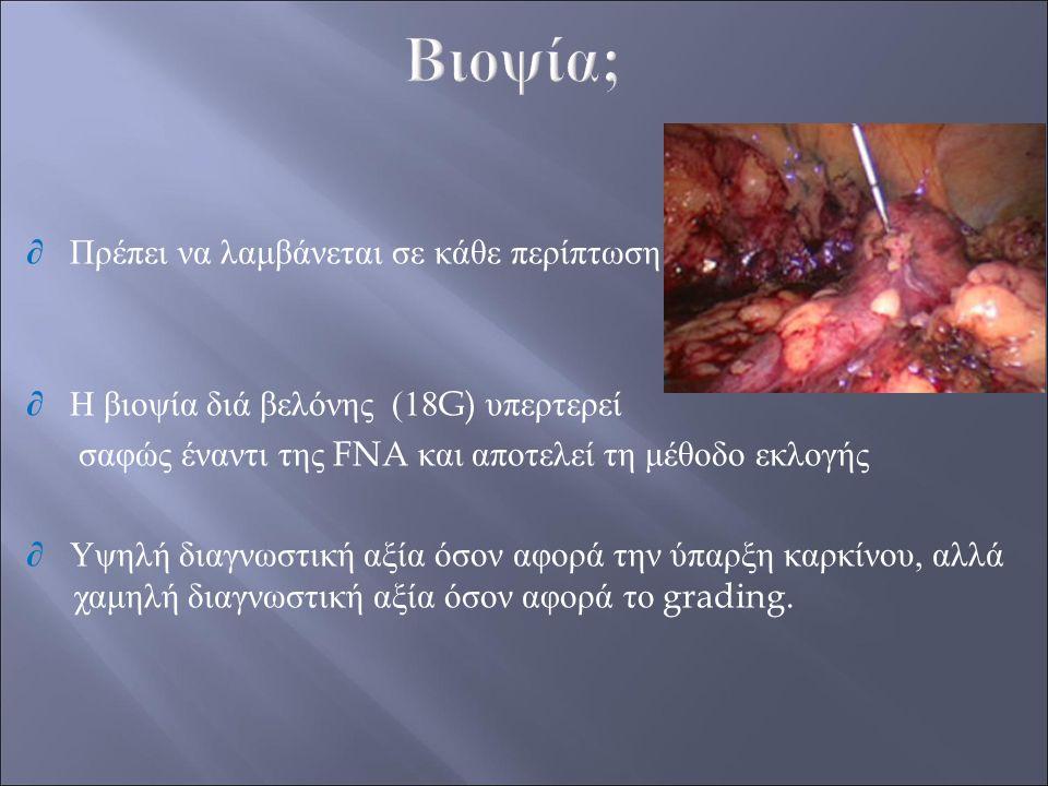 ∂ Πρέπει να λαμβάνεται σε κάθε περίπτωση ∂ Η βιοψία διά βελόνης (18G) υπερτερεί σαφώς έναντι της FNA και αποτελεί τη μέθοδο εκλογής ∂ Υψηλή διαγνωστικ