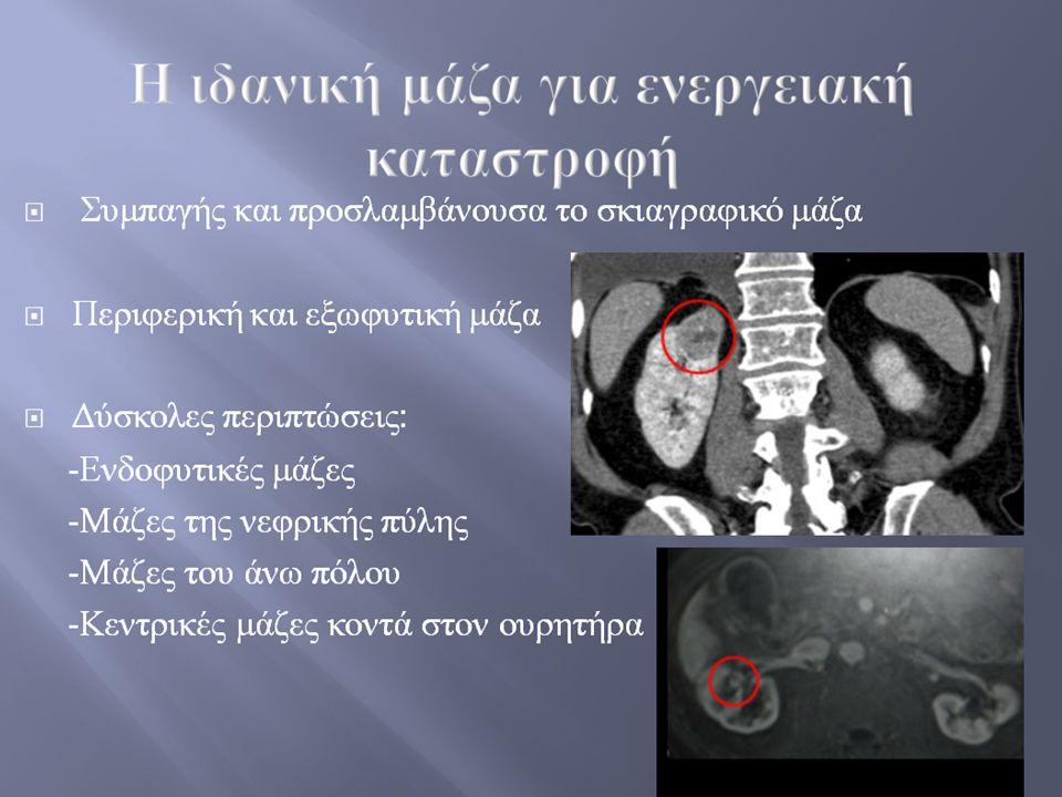  Συμπαγής και προσλαμβάνουσα το σκιαγραφικό μάζα  Περιφερική και εξωφυτική μάζα  Δύσκολες περιπτώσεις : - Ενδοφυτικές μάζες - Μάζες της νεφρικής πύ