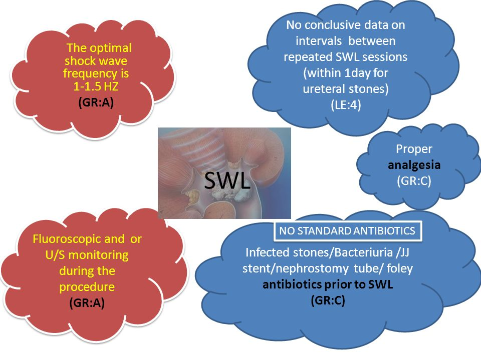 Επιπλοκές SWL Renal Colic2-4% (A BLOCKERS + NSADS) Bacteriuria7.7-23% ( Antibiotics prior next session) Sepsis1-2.7% ( ANTIBIOTICS+ HOSPITALIZATION) Hematoma symtomatic<1% Hematoma asymptomatic4-19% AsymptomaticLESymptomaticLESymptomatic +FeverLE 1)MET11) URS (GR:C)31)PCN (GR:C)1 2)SWL31)PCN32) STENT2 3)URS31)SWL (GR:C)3 2)STENT3 Steinstrasse  4-7%  Απόφραξη 23% (συχνά σιωπηλή/silent)  jj stent σε λίθους >15mm Steinstrasse  4-7%  Απόφραξη 23% (συχνά σιωπηλή/silent)  jj stent σε λίθους >15mm
