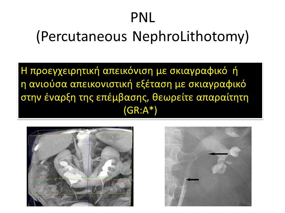 PNL (Percutaneous NephroLithotomy) H προεγχειρητική απεικόνιση με σκιαγραφικό ή η ανιούσα απεικονιστική εξέταση με σκιαγραφικό στην έναρξη της επέμβασης, θεωρείτε απαραίτητη (GR:A*) H προεγχειρητική απεικόνιση με σκιαγραφικό ή η ανιούσα απεικονιστική εξέταση με σκιαγραφικό στην έναρξη της επέμβασης, θεωρείτε απαραίτητη (GR:A*)