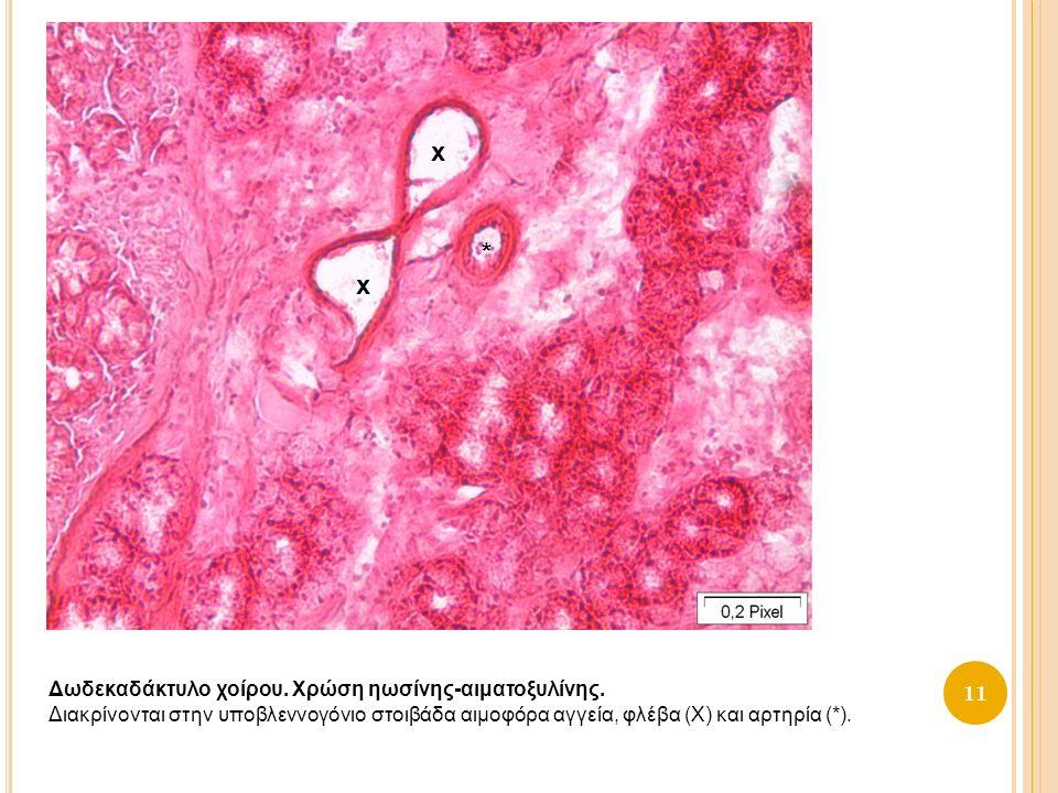 11 Δωδεκαδάκτυλο χοίρου. Χρώση ηωσίνης-αιματοξυλίνης.