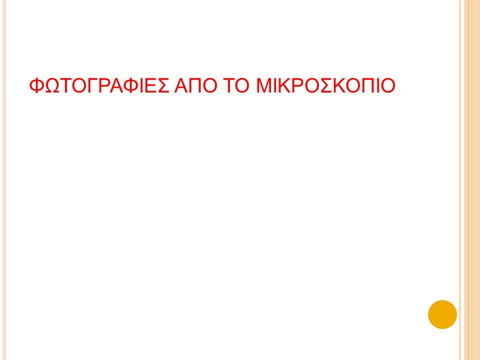 ΦΩΤΟΓΡΑΦΙΕΣ ΑΠΟ ΤΟ ΜΙΚΡΟΣΚΟΠΙΟ
