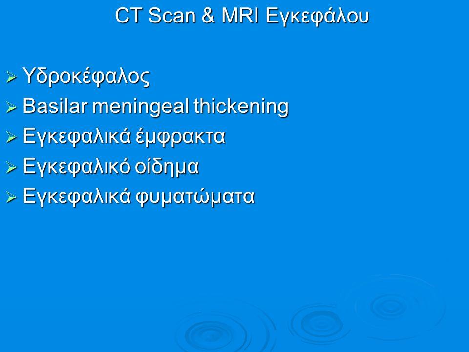 CT Scan & MRI Εγκεφάλου CT Scan & MRI Εγκεφάλου  Υδροκέφαλος  Basilar meningeal thickening  Εγκεφαλικά έμφρακτα  Εγκεφαλικό οίδημα  Εγκεφαλικά φυ