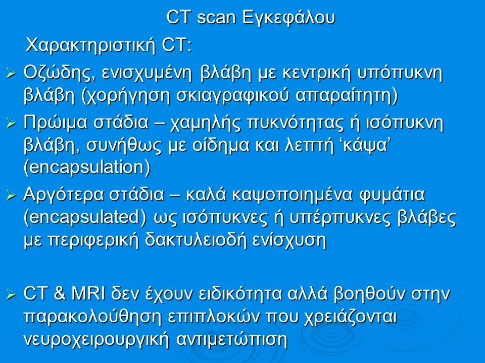 CT scan Εγκεφάλου CT scan Εγκεφάλου Χαρακτηριστική CT: Χαρακτηριστική CT:  Οζώδης, ενισχυμένη βλάβη με κεντρική υπόπυκνη βλάβη (χορήγηση σκιαγραφικού