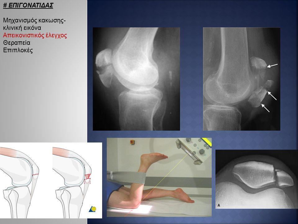 # ΕΠΙΓΟΝΑΤΙΔΑΣ Μηχανισμός κακωσης- κλινική εικόνα Απεικονιστικός έλεγχος Θεραπεία Επιπλοκές