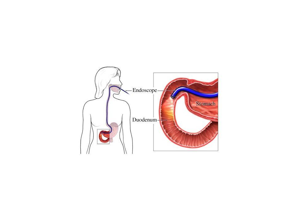 -σκοπήσεις Λαπαροσκόπηση: επισκόπηση της κοιλιάς και των ενδοπεριτοναϊκών οργάνων με ειδική κυλινδρική κάμερα, υπό συνθήκες χειρουργείου (νάρκωση) Αρχικά γίνεται τομή στο δέρμα, εισαγωγή ειδικής κάνουλας εντός της κοιλίας και μετά εμφύσηση CO2 ενδοπεριτοναϊκά.