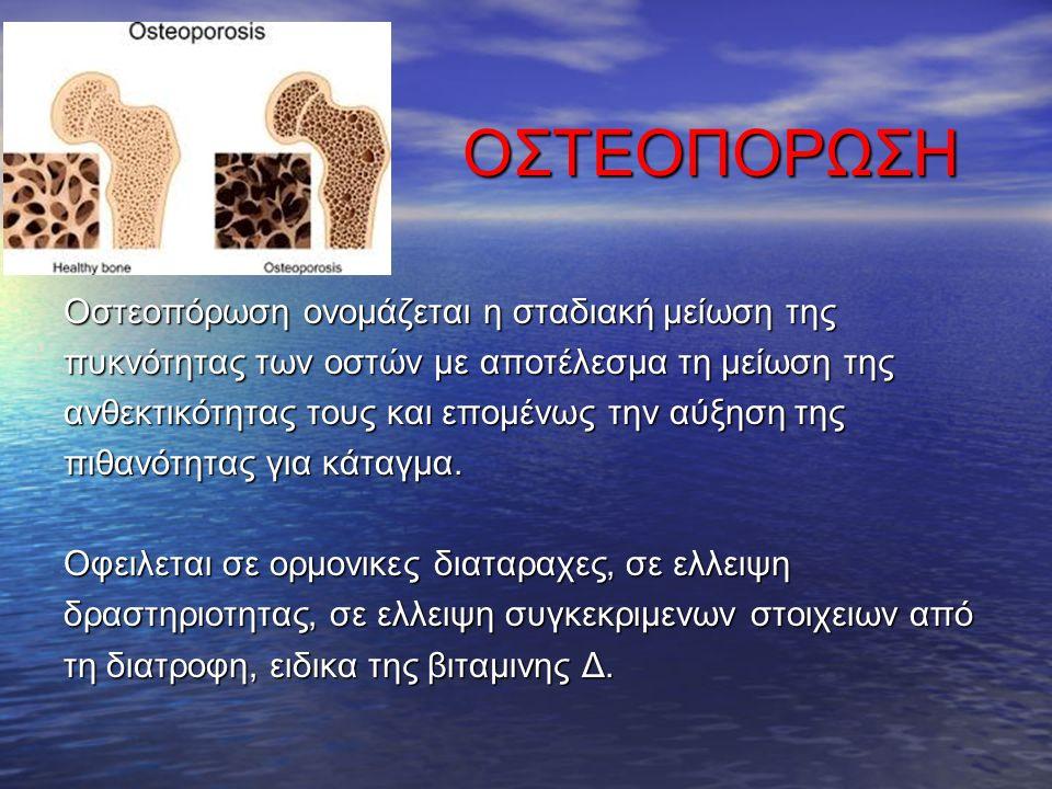 ΟΣΤΕΟΠΟΡΩΣΗ ΟΣΤΕΟΠΟΡΩΣΗ Οστεοπόρωση ονομάζεται η σταδιακή μείωση της πυκνότητας των οστών με αποτέλεσμα τη μείωση της ανθεκτικότητας τους και επομένως