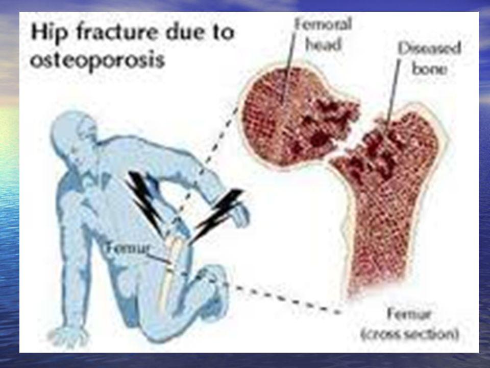Το ανοιχτο καταγμα είναι πιο σοβαρο εξαιτιας της ευκολιας με την οποια μπορει να μολυνθει και να προκληθει μια οστεομυελιτιδα.