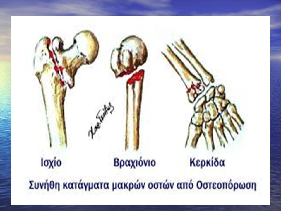 Διακριση από: -άλλες αρθριτιδες -από το ρευματικο πυρετο -τη φυματιωση των οστων -ογκο του Ewing.