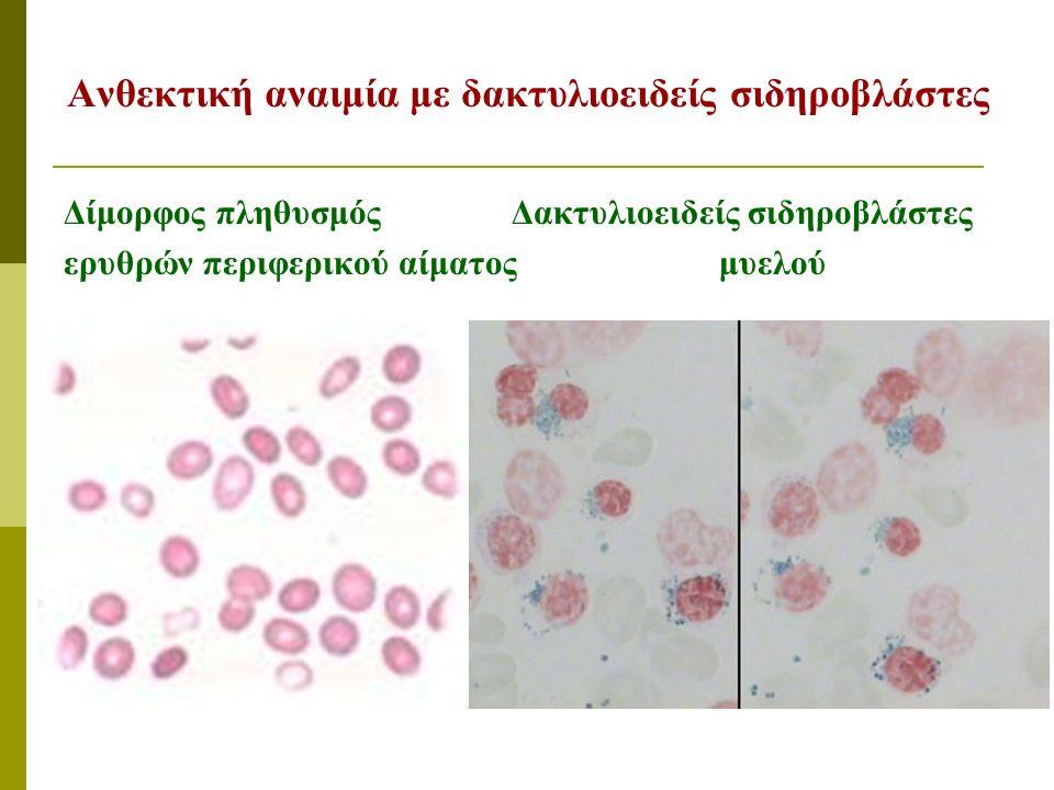 Ανθεκτική αναιμία με δακτυλιοειδείς σιδηροβλάστες Δίμορφος πληθυσμός Δακτυλιοειδείς σιδηροβλάστες ερυθρών περιφερικού αίματος μυελού