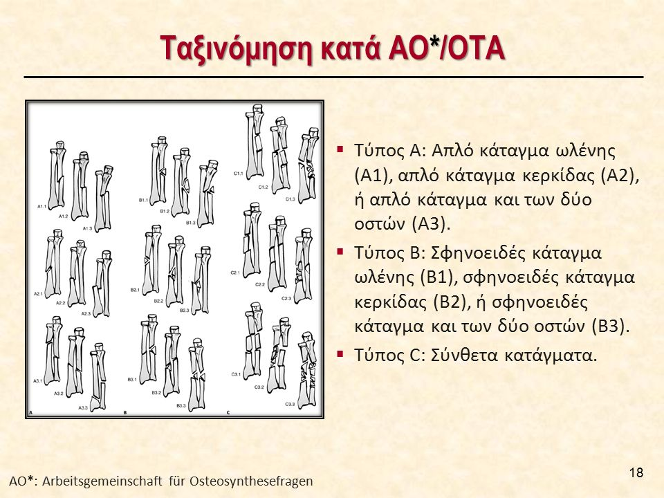  Τύπος Α: Απλό κάταγμα ωλένης (Α1), απλό κάταγμα κερκίδας (Α2), ή απλό κάταγμα και των δύο οστών (Α3).  Τύπος Β: Σφηνοειδές κάταγμα ωλένης (Β1), σφη