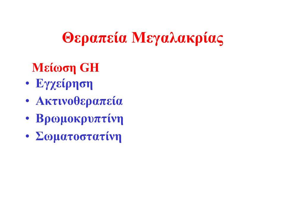 Θεραπεία Μεγαλακρίας Εγχείρηση Ακτινοθεραπεία Βρωμοκρυπτίνη Σωματοστατίνη Μείωση GH