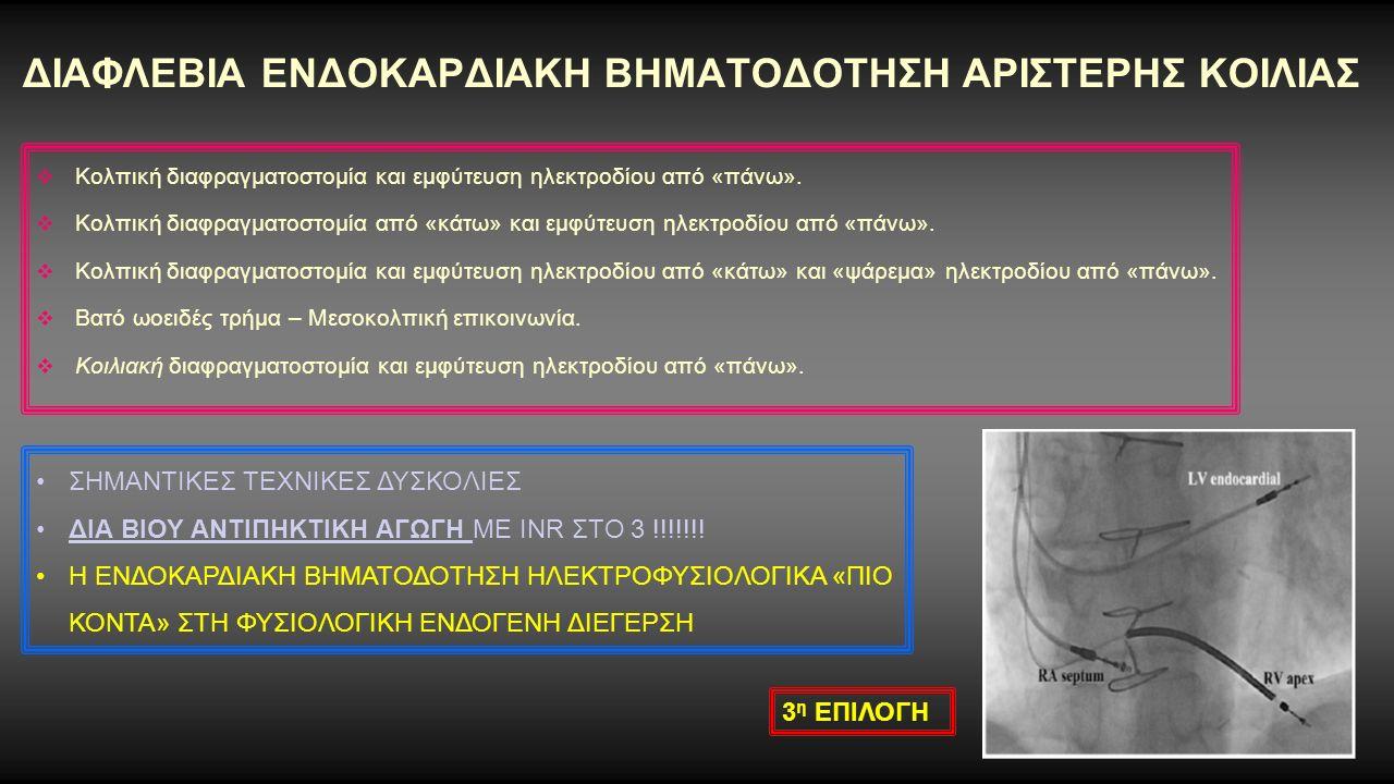 ΕΠΙΚΑΡΔΙΑΚΗ ΑΜΦΙΚΟΙΛΙΑΚΗ ΒΗΜΑΤΟΔΟΤΗΣΗ VS ΕΝΔΟΚΑΡΔΙΑΚΗΣ ΑΜΦΙΚΟΙΛΙΑΚΗΣ ΒΗΜΑΤΟΔΟΤΗΣΗΣ Comparison of chronic biventricular pacing between epicardial and endocardial left ventricular stimulation using Doppler tissue imaging in patients with heart failure.
