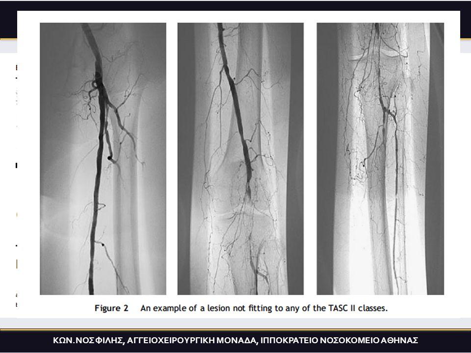Primary treatmentOne year later K. FILIS, MD, IPPOKRATEION HOSP. ΑΞΙΟΛΟΓΗΣΗ ΤΗΣ TASC