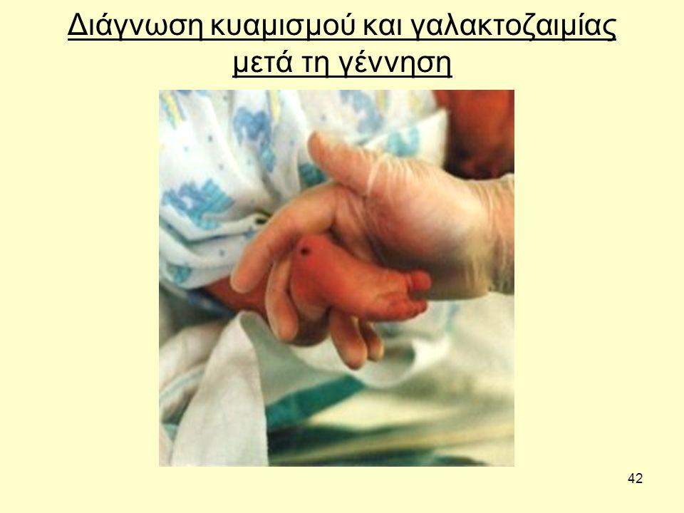 42 Διάγνωση κυαμισμού και γαλακτοζαιμίας μετά τη γέννηση