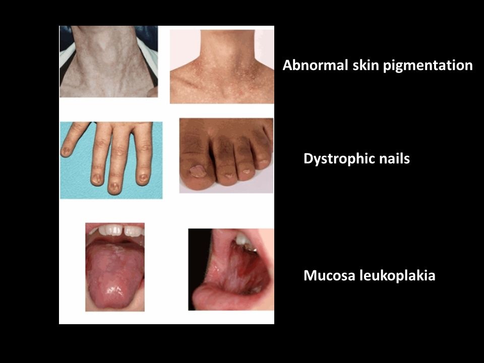 Abnormal skin pigmentation Dystrophic nails Mucosa leukoplakia