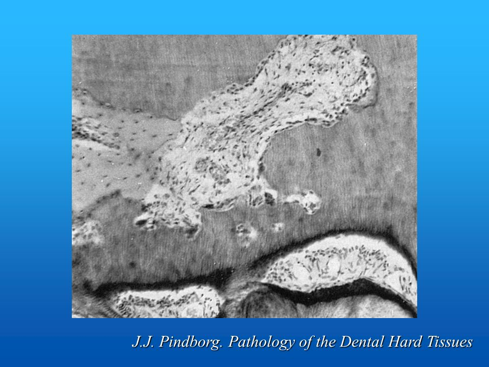J.J. Pindborg. Pathology of the Dental Hard Tissues