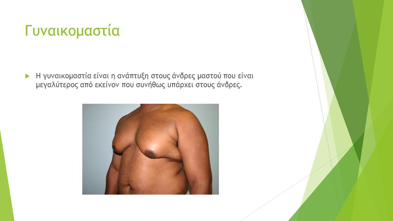 Γυναικομαστία  Η γυναικομαστία είναι η ανάπτυξη στους άνδρες μαστού που είναι μεγαλύτερος από εκείνον που συνήθως υπάρχει στους άνδρες.