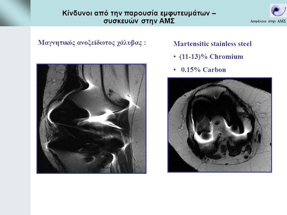 Martensitic stainless steel (11-13)% Chromium 0.15% Carbon Μαγνητικός ανοξείδωτος χάλυβας : Ασφάλεια στην ΑΜΣ Κίνδυνοι από την παρουσία εμφυτευμάτων – συσκευών στην ΑΜΣ