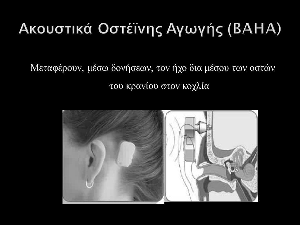 Μεταφέρουν, μέσω δονήσεων, τον ήχο δια μέσου των οστών του κρανίου στον κοχλία