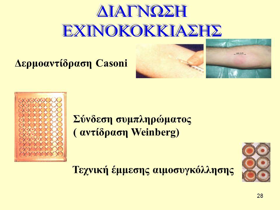 28 Τεχνική έμμεσης αιμοσυγκόλλησηςΣύνδεση συμπληρώματος ( αντίδραση Weinberg) Δερμοαντίδραση Casoni